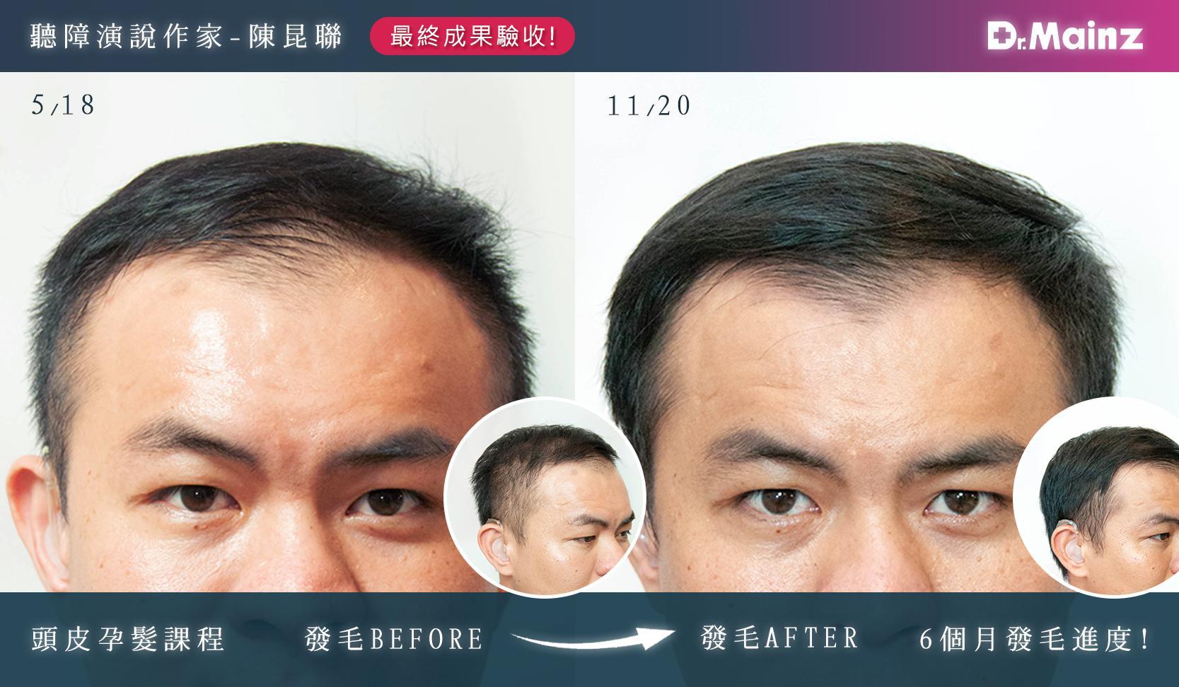 孕髮版型(後-1)-陳昆聯