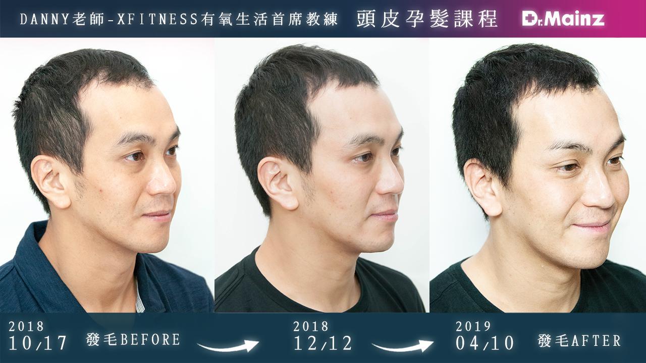 偷偷告訴你生髮的祕訣《孕髮療程》 (1)