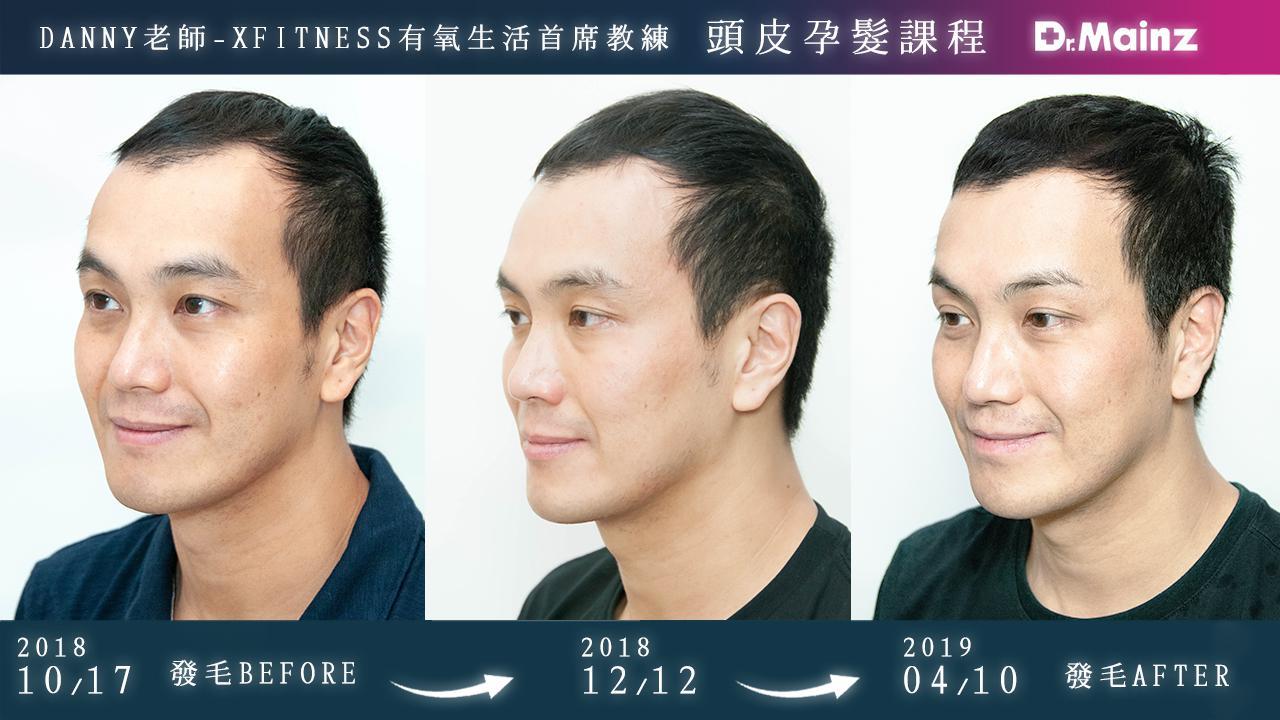 偷偷告訴你生髮的祕訣《孕髮療程》 (2)