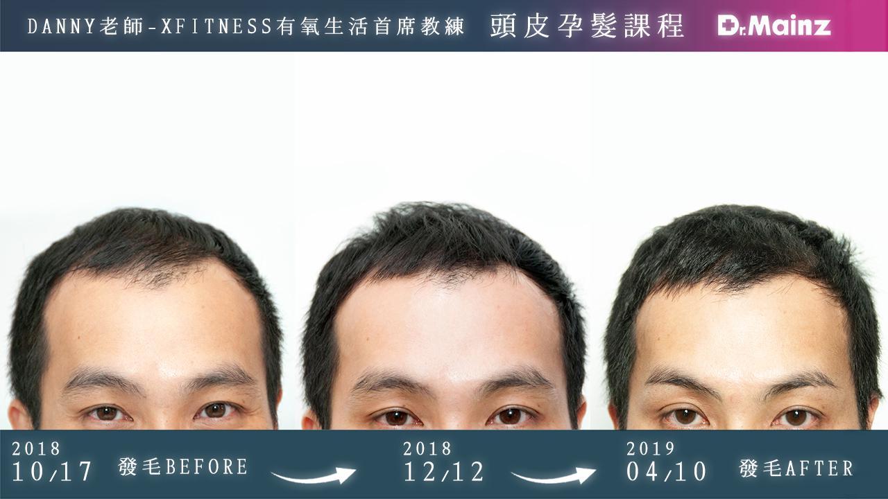 偷偷告訴你生髮的祕訣《孕髮療程》 (4)