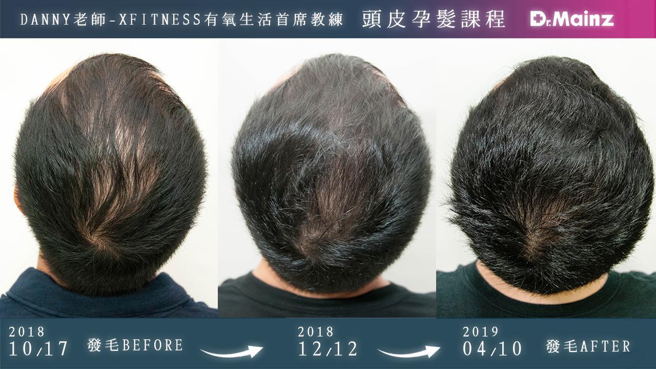 偷偷告訴你生髮的祕訣《孕髮療程》 (5)