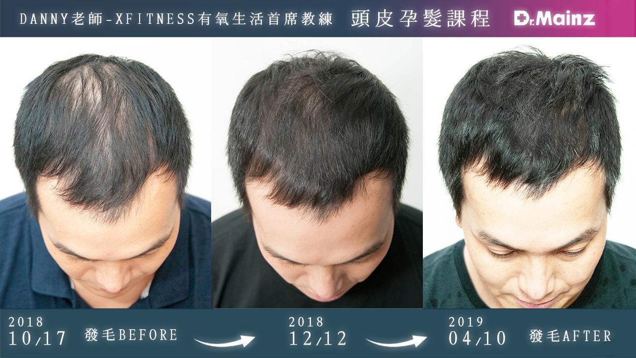 偷偷告訴你生髮的祕訣《孕髮療程》 (6)