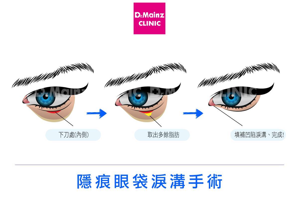 眼袋手術方式