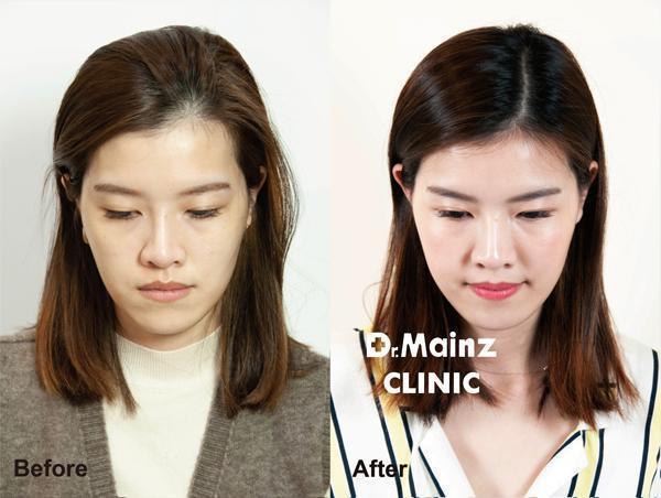 麥茵茲-玻尿酸-術前後2